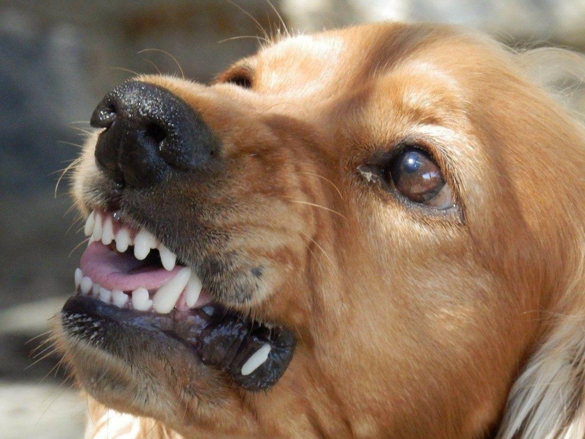 Девушку-педагога отправили в больницу после нападения бродячих собак в Астрахани