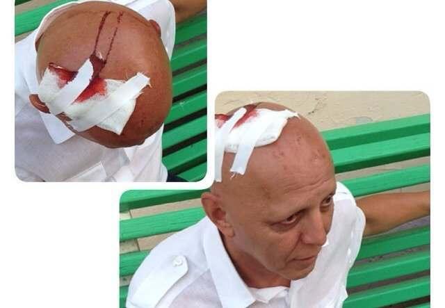 В Астрахани кандидата-коммуниста травмировали на Больших Исадах