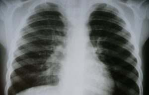 Один из зараженных коронавирусом астраханцев подключен к ИВЛ