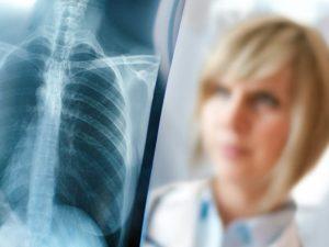Стали известны данные о случаях пневмонии в Астраханской области