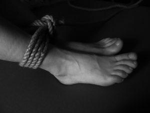 Астраханка сломала себе ногу и обвинила в этом сожителя