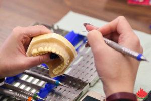 Астраханские стоматологи изучали пародонтальную терапию