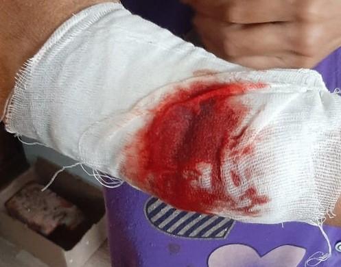 Собака разорвала руку жительнице Наримановского района